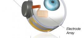 Une première dans l'implémentation de l'œil bionique