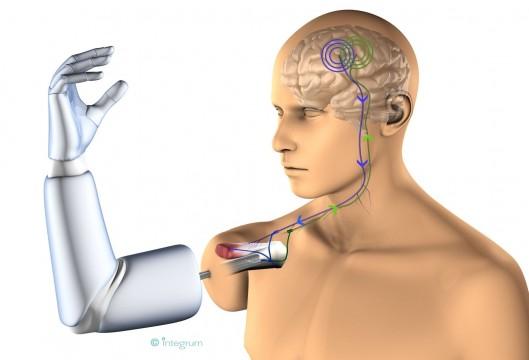 Implanter définitivement une prothèse et la contrôlée par la pensée!