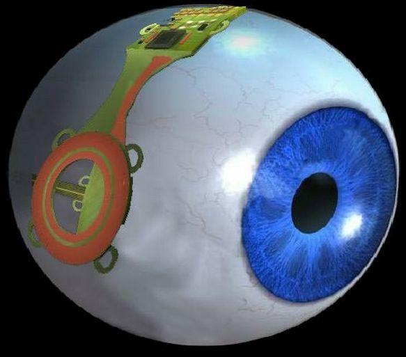 Redonner la vision aux aveugles grâce à un implant d'oeil bionique